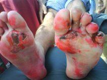 Feet After Marathon Runners