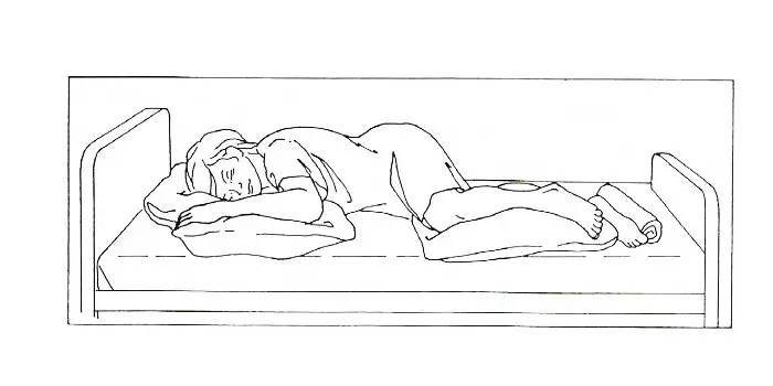 Lateral Side-Lying Position