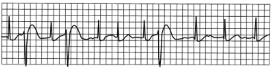 ECG: Premature ventricular contractions (PVCs)