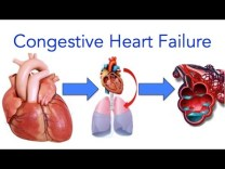 Congestive Heart Failure (CHF) Explained