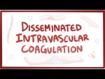Disseminated intravascular coagulation - causes, symptoms, diagnosis, treatment, pathology