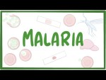 Malaria - causes, symptoms, diagnosis, treatment, pathology