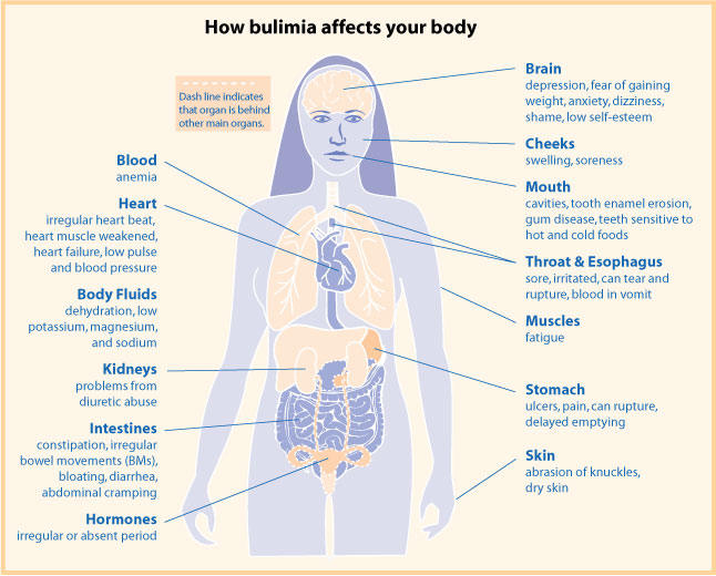 my daughter has bulimia