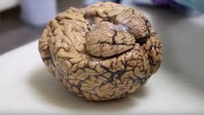 Photo of العثور على مخ بحالة جيدة لجمجمة بشري مقتول منذُ 2600 سنة