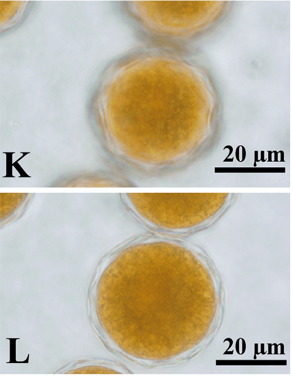 Fig. 1K and L from Nozaki et al. 2015: Two views of mature Volvox reticuliferus zygotes with a reticulate wall.