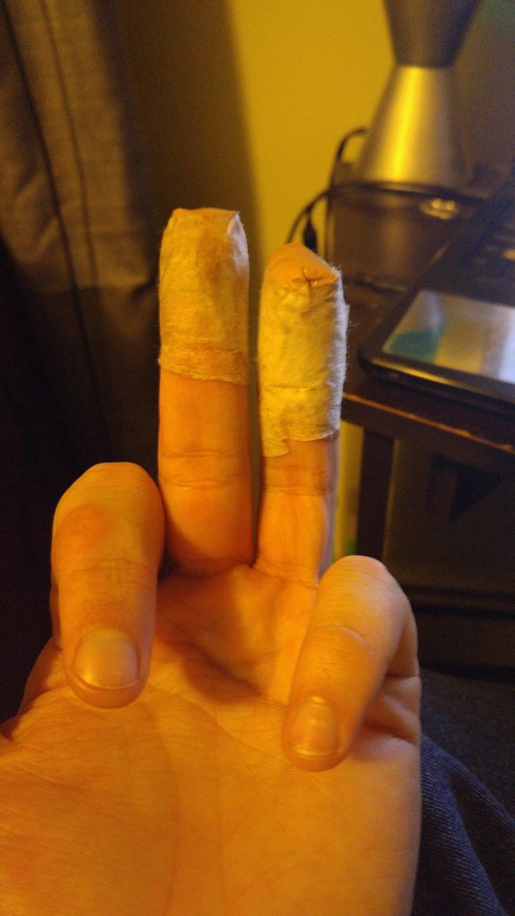 My fingers, sliced up by a very sharp knife... post bandaging...