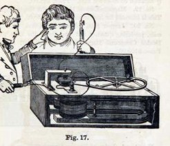 This is a free antique illustration of medical equipment featuring an early electronic machine