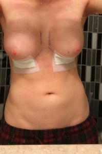 Breast augmentation story breasts after surgery