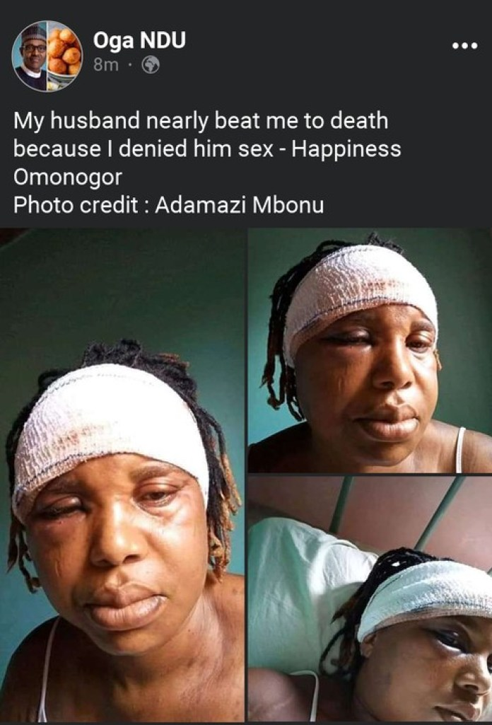 Woman Laments As Husband Beats Her To Pulp For Denying Him Se×