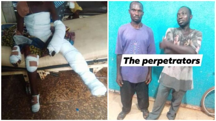 2 Traders Throw A 13-year-old Boy Into Fire For Stealing Rice (Photos)