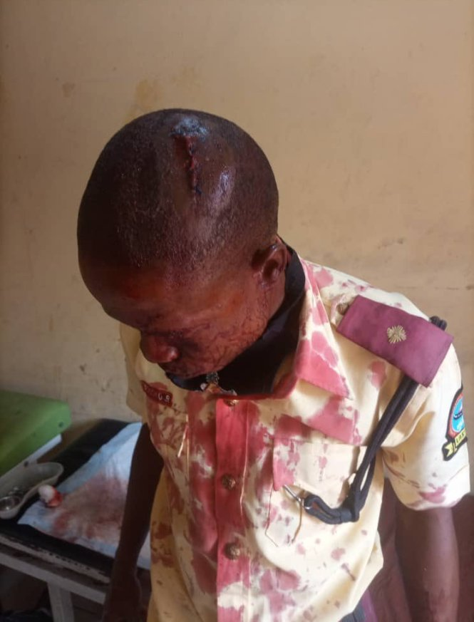 Commercial Driver Hit LASTMA Official's Head With A Pestle (Photos)
