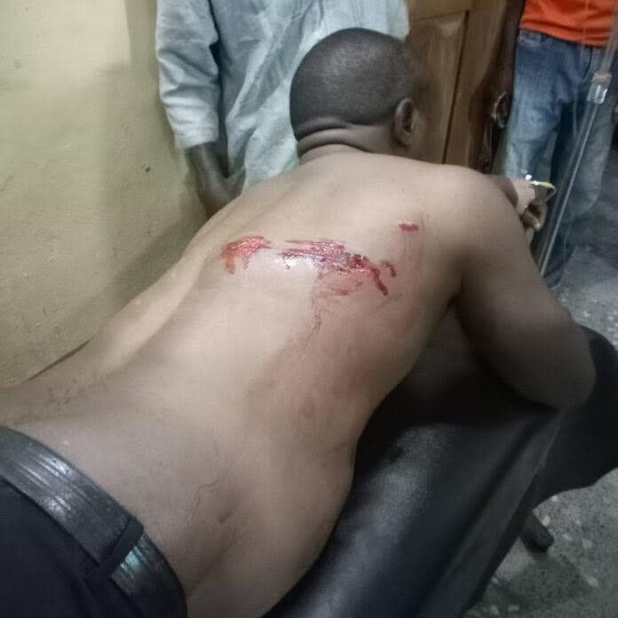 Fulani Herdsmen Attack Medical Doctor, Leaves Him With Wounds From Gunshots In Cross River
