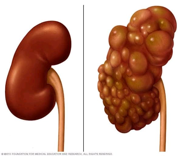 Things We Do That Destroys Our Kidney [MUST READ]