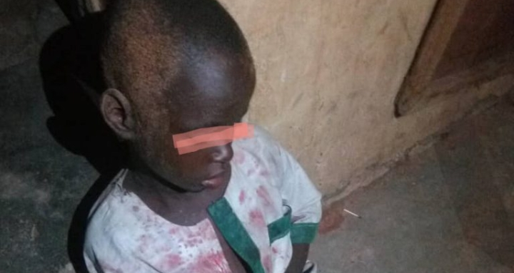 Unknown Persons Attack Almajiri School, Cut Off 7-year-old Boy's Hand (Photo)
