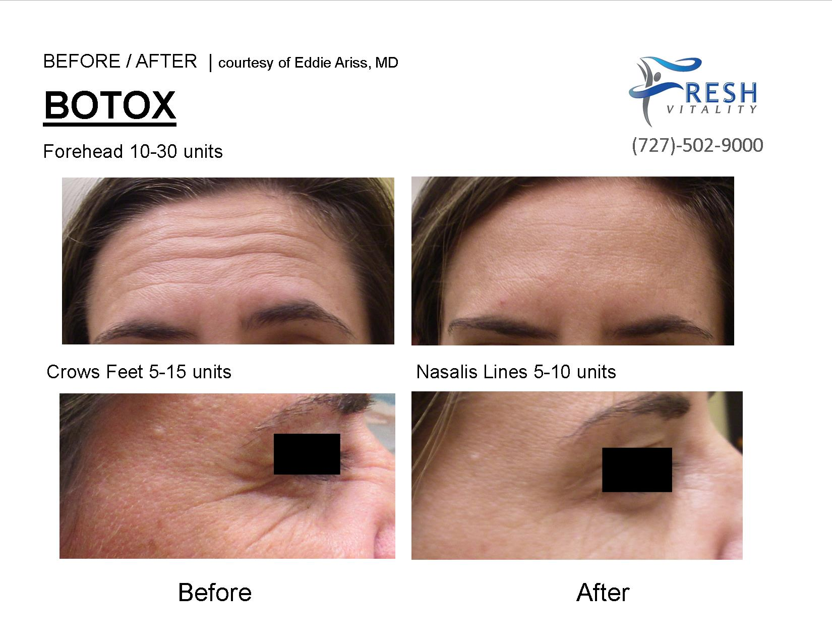 BOTOX St Petersburg - Call Fresh Vitality Med Spa Today ...
