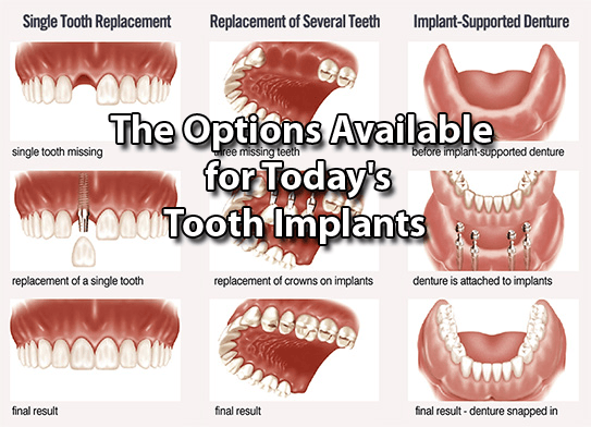 The Options Available for Todays Tooth Implants