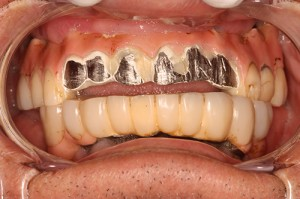 Implant Bridge Over Denture - Before
