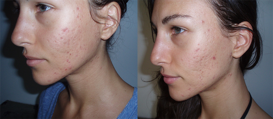 acne-before-after_living-libations_dew-dab