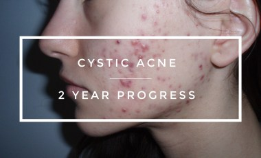 How I Cured My Cystic Acne Update: 1 Year After Probiotics Treatment