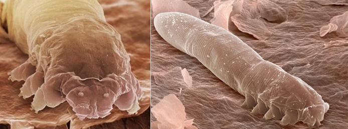Демодекс как лечить этот паразит  подкожный клещ - ?!