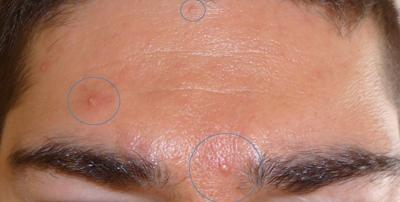 Как лечить волосы от демодекоза