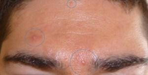 Как лечить ,,демодекс,, это паразит , подкожный клещ и избавиться от угрей и выпадания волос.