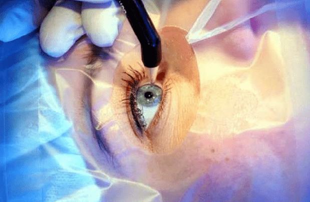 После COVID-19 популярны процедуры лазерной коррекции зрения