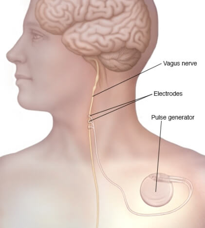 function of vagus nerve