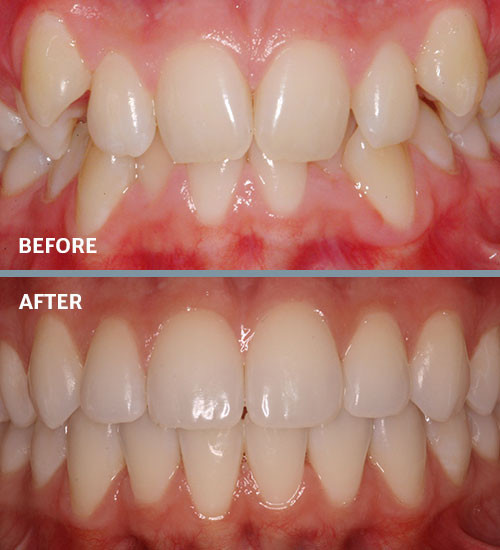 TMJ & Sleep Apnea Treatments | Frugé Orthodontics