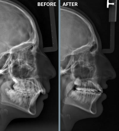 Orthodontic Treatments | Frugé Orthodontics