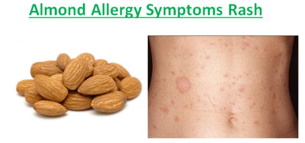 Almond Allergy Symptoms Rash