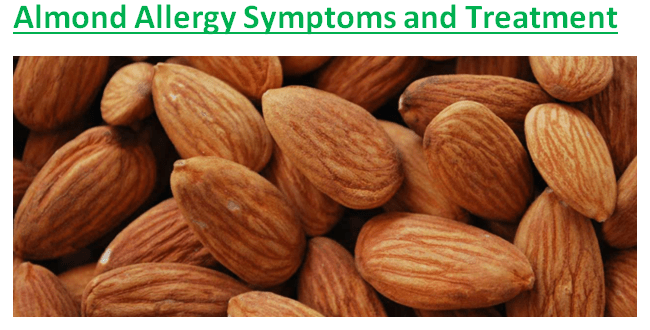 Almond Allergy Symptoms and Treatment