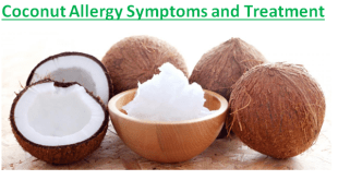 Coconut Allergy Symptoms and Treatment