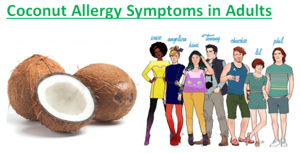 Coconut Allergy Symptoms in Adults