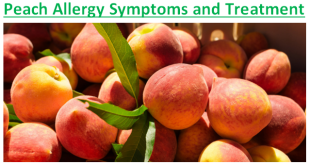 Peach Allergy Symptoms and Treatment