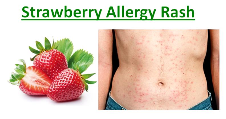 Strawberry Allergy Rash