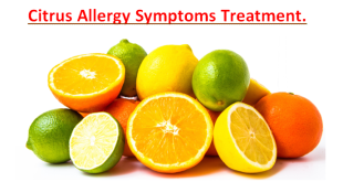 Citrus Allergy Symptoms Treatment