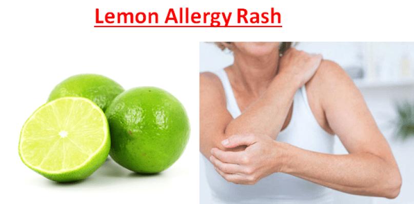 Lemon Allergy Rash