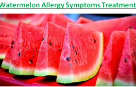 Watermelon Allergy Symptoms Treatment