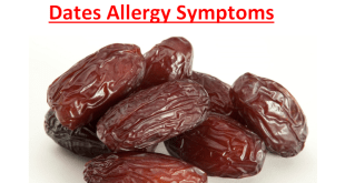 Dates Allergy Symptoms