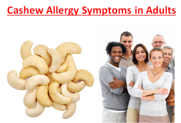 Cashew Allergy Symptoms in Adults