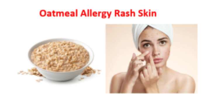 Oatmeal allergy Rash skin