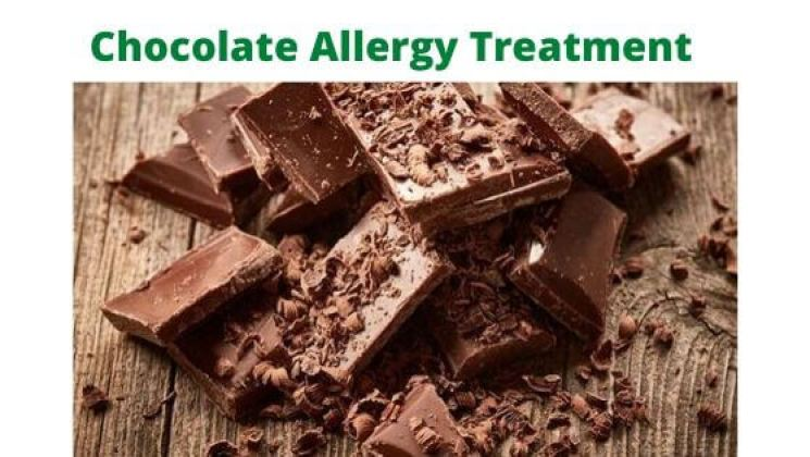 How to treat choculate allergy