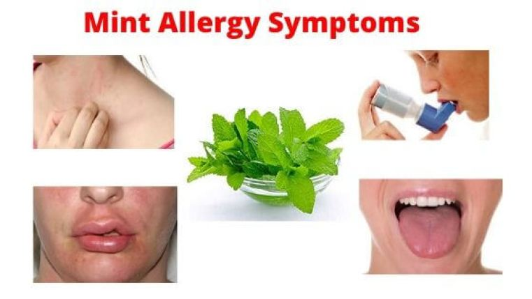 Mint Allergy Symptoms