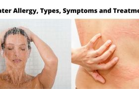 Water Allergy, Types, Symtoms and Treatment