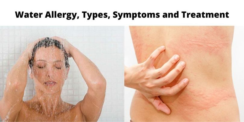 Water Allergy, Types, Symptoms and Treatment