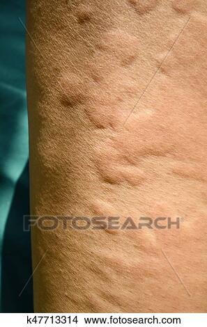 Flå overilet, urticaria, allergic, hud, reaction. Bilde   k47713314   Fotosearch