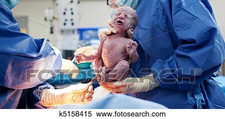banque d image bebe etre ne via cesarienne section