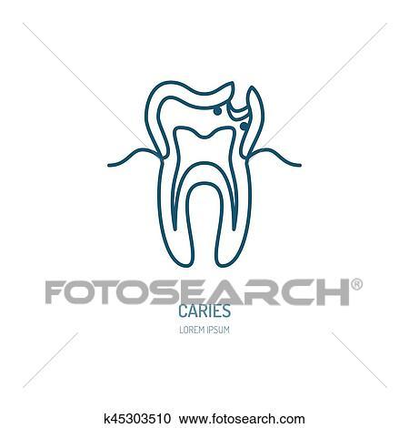 caries treatment dentist line