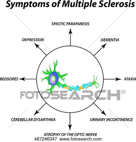 Symptoms of multiple sclerosis. The destruction of the